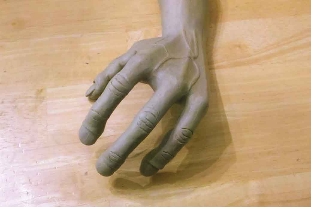 a study on the alien hand syndrome Alien hand syndrome: alien hand movement in the posterior form may show a typical posture the overall results of our study.